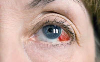 What is a Sub-conjunctival haemorrhage?